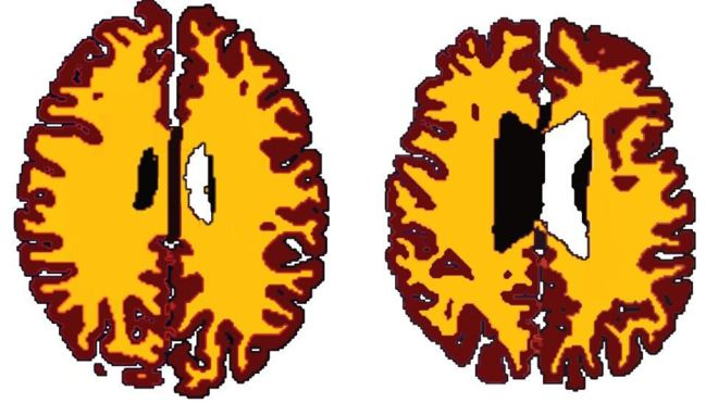 beyin obezite